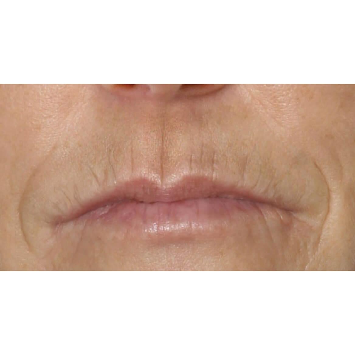 DermeCeuticals Upper Lip Line Define-369215